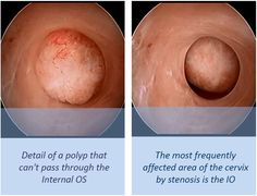 Detail of a polyp that can't pass through the internal OS. The most frequently affected area of the cervix by stenosis is the internal OS.