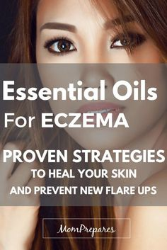 Essential Oils For Eczema: Proven Strategies To Heal Your Skin And Eliminate New Flare-Ups Essential oils can relieve eczema symptoms and bring your skin back to normal in no time. Read on for specific recipes and instructions. via Mom Prepares Essential Oils For Rosacea, Doterra Essential Oils, Essential Oil Blends, Natural Asthma Remedies, Eczema Remedies, Eczema Symptoms, Nummular Eczema, Severe Eczema, Psoriasis Cure