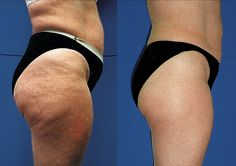 Fix your cellulite now! 5 simple steps