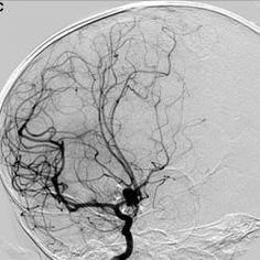 Image of Takayasu's arteritis image gallery