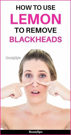 The best way to Remove Dim Spots From Face Within two Days #WhiteDeerWithBrownSpots #HowToRemoveBrownSpots #IHaveBrownSpotsOnMySkin #GetRidOfBrownSpots #SkinRedBrownSpots #SkinCareForBrownSpots #CreamForBrownSpotsOnFace #BrownSpotsInFace #FaceMolesBrownSpots Sun Spots On Skin, Black Spots On Face, Brown Spots On Hands, Dark Spots, Brown Skin, Dark Skin, Dark Brown, Skin Moles, Dark Under Eye