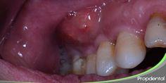 Pericoronitis |Inflamación de la encía muela del juicio