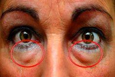 Sommige mensen hebben meer kans dan anderen om donkere kringen of wallen rond hun ogen te krijgen. Vermoeidheid, gebrek aan slaap en stress behoren tot de meest voorkomende factoren die een grote invloed hebben op