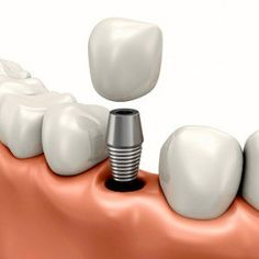 Los implantes dentales, ¿son la mejor alternativa?