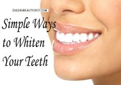 ♥ Indian Beauty Spot ♥ – Simple Ways to Clean White Teeth