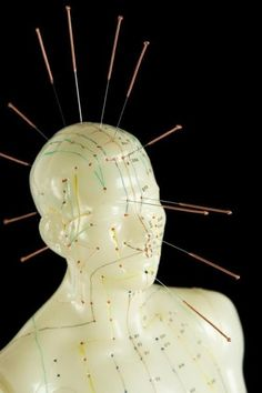 Acupuncture has been used for over two millennia in East-Asian medicine to treat pain. Using brain imaging, researchers have provided novel evidence that traditional Chinese acupuncture affects the brain's long-term ability to regulate pain. Their findings show acupuncture acts as more than a placebo, and can activate receptors in the brain that process and dampen pain signals.