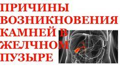 Камни в желчном. Энергоинформационные причины камней в желчном пузыре. https://www.youtube.com/watch?v=5p80LiQjTHw