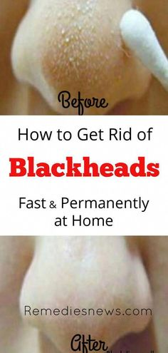 Blackheads Removal - How to get rid of blackheads and pimples at home fast Get Rid Of Warts, How To Get Rid Of Pimples, Get Rid Of Blackheads, Remove Warts, Natural Sleep Remedies, Cold Home Remedies, Natural Cures, Natural Health, Natural Skin
