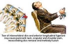 Cervical Neck Injury Symptoms - Bing Images