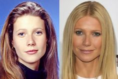 10 Celebrities Before And After Cosmetic Surgery