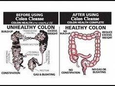 Most experts would agree that a regular colon cleanse program can ensure a better way of living. They believe that other forms of colon cleansing such as colon Colon Cleanse Diet, Natural Colon Cleanse, Colon Detox, Smoothie Cleanse, Juice Smoothie, Cleanse Detox, Cleansing Smoothies, Liver Detox, Juice Cleanse