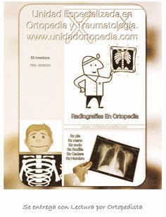 Tratamientos médicos con ortopedistas y traumatología en Bogotá -Colombia