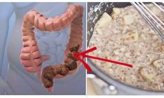 Древнегреческий врач сказал, что«Смерть начинается в толстой кишке».Сегодня современная наука доказала, что он был прав. Огромное количество людей всего мира сталкиваются с проблемами кишечника. Наиболее распространенные заболевания, связанные с проблемным кишечником это: Синдром раздраженной толстой кишки Болезнь Крона Запор Колит Кислотный рефлюкс Сегодня мы хотим поделиться с вами удивительным средством, которое эффективно очистит ваш кишечник. […]