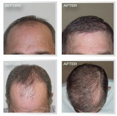 The best hair transplants are Natural Transplants. Get your hair restoration surgery now by calling 844-327-4247.
