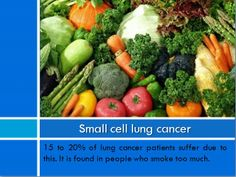 Natural Cancer Treatment Lung Cancer, Stem Cells, Cancer Treatment, Natural, Nature, Au Natural