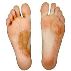 Natural Cure For Athlete's Foot  2 oz. of Young Living's Lavender Hand and Body Lotion with 10 drops of Thyme,5 drops of Lavender, and 10 drops of Meleleuca Essential oils.