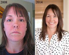 Cómo invertí mi enfermedad debilitante con Alimentos | DeliciouslyOrganic.net
