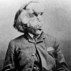 One of the most well-known sideshow performers ever was born in 1862 in Leicester with unclear genetic defects that caused abnormal skin and bone growth. At the age of 5, young Joseph's skin began appearing lumpy, and his lips, feet, and one arm swelled...