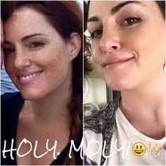 FRESH GLOWING SKIN Transformation Tuesday! Ready to change your skin??   Check out Josie Allen-Price's incredible results on REVERSE. She lives in sunny San Diego!!!  ☀️ Are you still wondering if these products work? They do and I would love to see your 60 days results! This is my all time favorite R+F product and I use it daily. Did you know REVERSE was the #1 product sold in Nordstrom? It was pulled out of high end department stores and is now part of the fastest gro