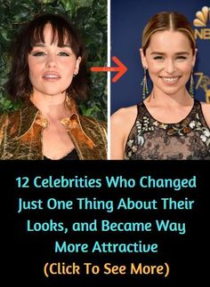 12 Celebrities Who Changed Just One Thing About Their Looks, and Became Way More Attractive Celebrity Outfits, Celebrity Couples, Celebrity News, Celebrity Style, Top 10 Actors, Celebrities Then And Now, Viral Trend, Hollywood Celebrities, Actor Model