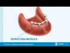 Protesis Completas Sobre Implantes-Brossard-La Prairie-St-Hubert-Longueu...