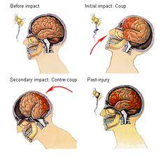 Diffuse Axonal Injury - Google Search