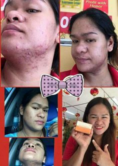 Nlighten Kojic Papaya With Glutathione Soap Php 200 + sf Message me for your orders