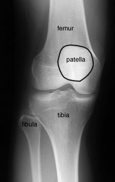 Radiographic Anatomy of the Skeleton: Knee -- Anteroposterior (AP) View, Labelled