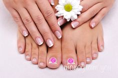 rose-nails-french-manicure-and-pedicure- Manicura-francesa- uñas nails Toenail Fungus Remedies, Toenail Fungus Treatment, French Pedicure, Manicure Y Pedicure, Mani Pedi, Nail Spa, Pedicure Ideas, Nail Ideas, Nail Infection