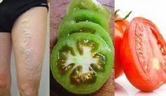 Incrível! Com a ajuda de um simples tomate, você pode se livrar das varizes   Cura pela Natureza: