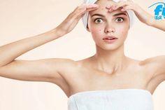 Akne - Das hilft wirklich bei Pickeln und unreiner Haut! #akne #reinehaut #beauty