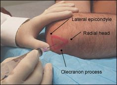 Image result for intra articular injection sites