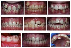 Our teeth tell the tale of good or bad health. Very eye-opening and informative...with help and healing for cavities and other dental diseases...