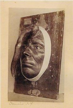This is a wax model of Madame Dimanche, who had a 9.8 inch cutaneous horn on her head. It took six years to grow to that length. It was removed successfully by a famed French surgeon.