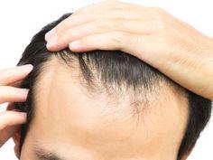 Hair Growth Center is the best hair restoration and hair transplant clinics in London, UK. Our expert team performs FUT and FUE hair transplant procedures! Hair Loss Treatment, Hair Oil For Men, Chronischer Stress, Prp Hair, Reduce Hair Fall, Best Hair Oil, Hair Specialist, Hacks, Per Diem