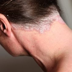 DIY Psoriasis Remedies ~ Scalp Psoriasis Treatment - This link gives suggestions including coconut oil, olive oil, aloe vera, curd. Worth a try!