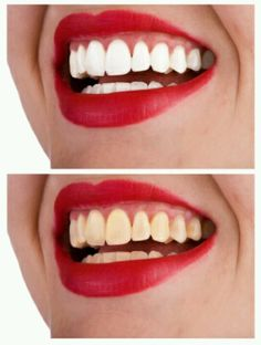 White teeth instantly. (I personally have tried this. I saw something similar to this on pinterest. And thought I'd share it.) 1. Rinse mouth with hydrogen peroxide. (Main ingredient in teeth whitener) for 30 sec. Then spit. 2. In a small bowl mix baking soda and hydrogen peroxide and a little bit of toothpaste for a better taste. 3. Dip toothbrush in the mix and brush your teeth. Dipping your brush in the mix as much as u like..also brushing your tongue. 4. Spit and rinse with mouthwash if desi