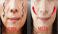 Skin Tips, Skin Care Tips, Beauty Secrets, Beauty Hacks, Lip Balm Recipes, Face Yoga, Lip Fillers, Healthy Beauty, Beauty Recipe