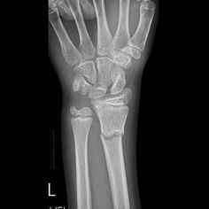 Greenstick fractures are incomplete fractures of long bones and are usually seen in young children, more commonly less than 10 years of age. They are commonly mid-diaphyseal, affecting the forearm and lower leg. They are distinct from torus fractures.  http://radiopaedia.org/articles/greenstick-fracture