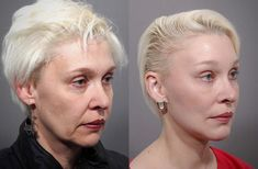 Mid Face Lift, Natural Face Lift, Endoscopic Brow Lift, Face Plastic Surgery, Sagging Cheeks, Facelift Before And After, Forehead Lift, Eyelid Lift, Site Mode