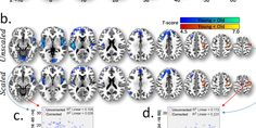 In a new study, researchers at the University of Cambridge and The Medical Research Council have demonstrated that previously reported changes in the aging brain using functional magnetic resonance imaging (fMRI) may be due to vascular (or blood vessels) changes, rather than changes in neuronal activity itself. Given the large number of fMRI studies used to assess the aging brain, this has important consequences for understanding how the brain changes with age and challenges current theories…