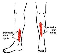 shin splints exercises