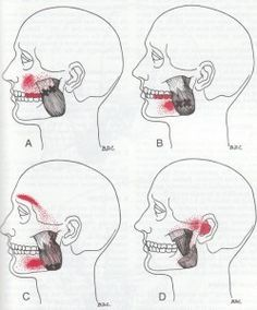 """Which Trigger Points Cause TMJ? Trigger points (""""X"""" on the images below) in several different face and neck muscles can cause jaw pain. Here are some of the most commonly afflicted. Jaw Pain, Neck Pain, Referred Pain, Tinnitus Symptoms, Craniosacral Therapy, Trigger Point Therapy, Trigeminal Neuralgia, Massage Benefits, Trigger Points"""