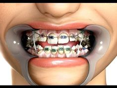 In any language...... Wear your elastics and you will shorten your time in braces!!! Take control of your future! Don't blame your orthodontist if you do not give elastics 100% percent of your time! And you go over your estimated deband date!
