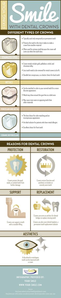 do patients get dental crowns? These devices can be used to protect, restore, support, replace, and improve the appearance of a variety of smiles! Click over to this Bel Air family dentistry infographic to get more details about dental crown functions. Dental Facts, Dental Humor, Dental Hygiene, Dental Health, Oral Health, Dental World, Dental Life, Smile Dental, Dental Assistant Study