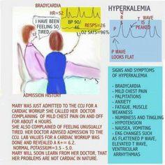 hyperkalemia Nursing Classes, Nursing Tips, Nursing Notes, Cardiac Nursing, Nursing Mnemonics, Nursing Diagnosis, Rn School, Medical School, Rn Nurse