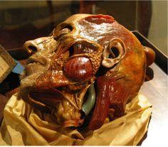 Gaetano Zumbo - tete anatomique