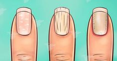Ochorenia môžu mať rôzne príznaky a ich širokú škálu vie najlepšie posúdiť lekár. Občas nás však naše telo dokáže varovať a o nerovnováha v organizme sa môže prejaviť napríklad na farbe moču, zmene pokožky či kvalite vlasov, zubov ale i nechtov. Ak sa vám zdá, že vaše nechty sú v poslednom čase iné, ako zvyčajne, … Health And Beauty, Detox, Beauty Hacks, Water Bottle, Health Fitness, Ale, Projects, Wax, Skincare Routine