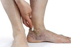 Varicose veins on feet and ankles may occur for a variety of reasons. Check out treatment of varices of the feet and ankle varies. Varicose Vein Remedy, Varicose Veins, Home Remedies, Natural Remedies, Floor Cleaner Recipes, What Causes Hair Loss, Homemade Christmas Gifts, Diy Christmas, Christmas Decorations