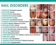 Image result for types of fingernails nclex